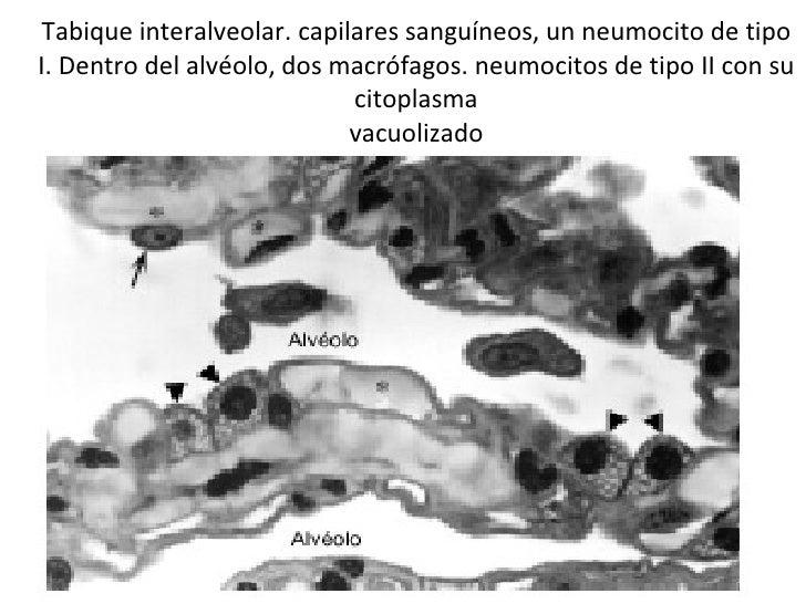Tabique interalveolar. capilares sanguíneos, un neumocito de tipo I. Dentro del alvéolo, dos macrófagos. neumocitos de tip...