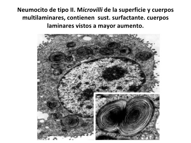Neumocito de tipo II. M icrovilli  de la superficie y cuerpos multilaminares, contienen  sust. surfactante. cuerpos lamina...