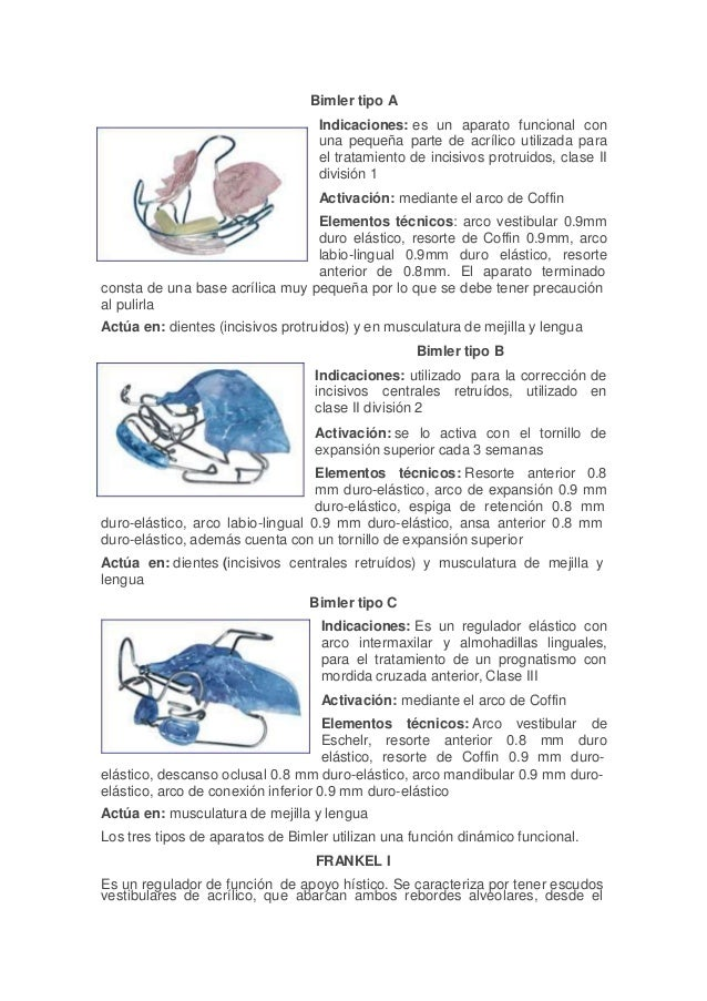 Bimler tipo A Indicaciones: es un aparato funcional con una pequeña parte de acrílico utilizada para el tratamiento de inc...