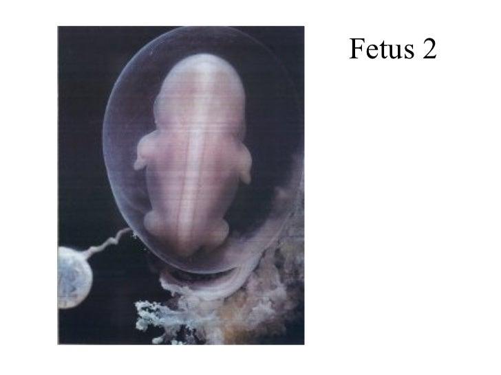 Fetus 2