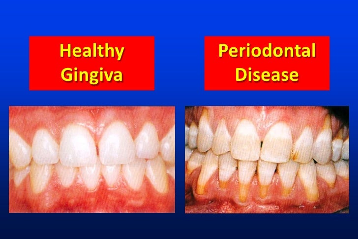Diabetes and Periodontal Disease The Relation