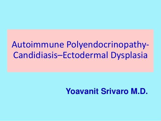 Autoimmune Polyendocrinopathy- Candidiasis–Ectodermal Dysplasia Yoavanit Srivaro M.D.