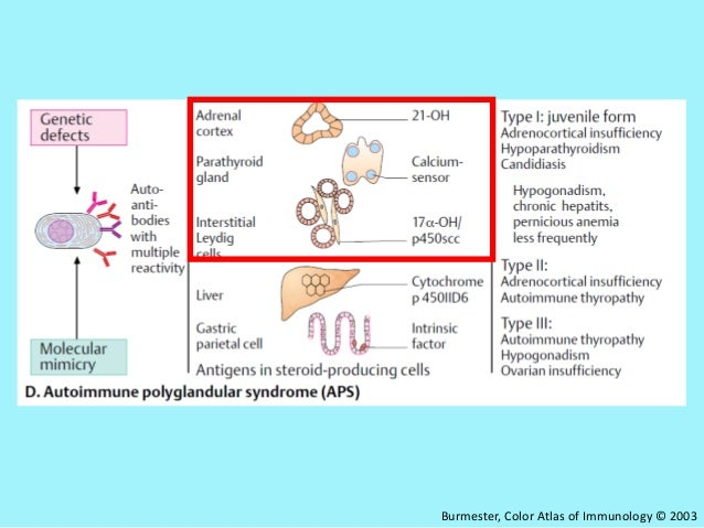 type i autoimmune polyendocrinopathy essay The aim of the present study was to investigate norwegian patients with autoimmune polyendocrine syndrome type i (aps i) 12 kai kisand, pärt peterson, autoimmune polyendocrinopathy candidiasis ectodermal dystrophy: known and novel aspects of the syndrome.
