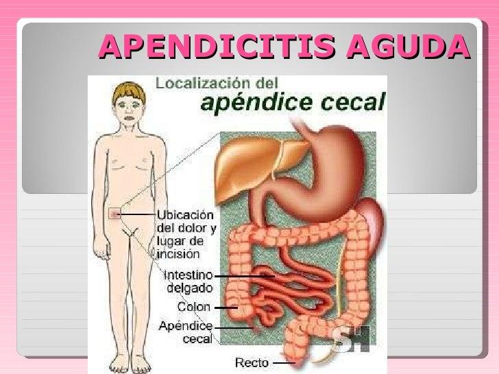 apendicitis-aguda-2-728.jpg?cb=1316902472