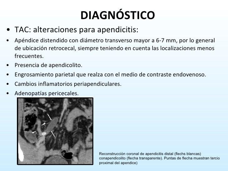 <ul><li>TAC: alteraciones para apendicitis:  </li></ul><ul><li>Apéndice distendido con diámetro transverso mayor a 6-7 mm,...