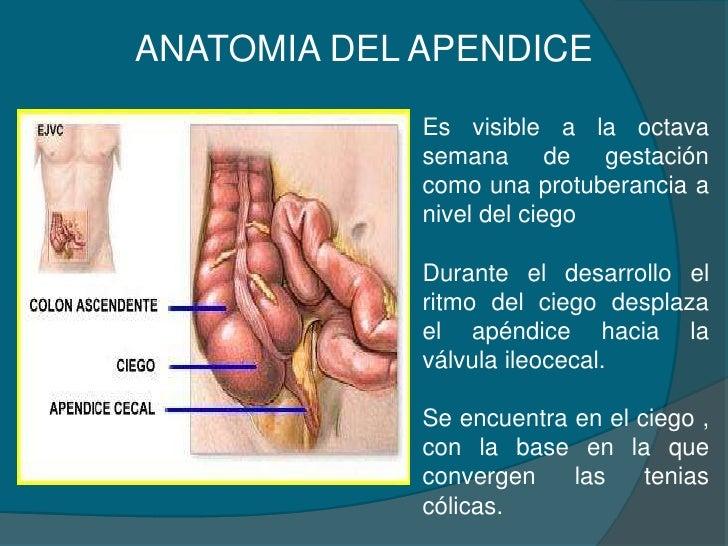 Apendicitis Belkis