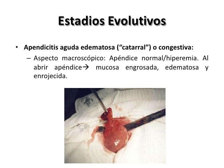 Estadios Evolutivos          • Apendicitis aguda necrótica            o gangrenosa:             – Exudado         peritone...