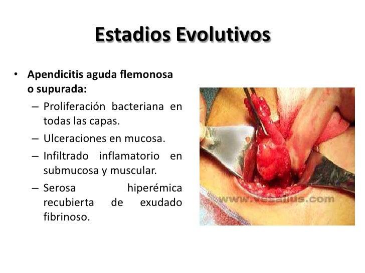 Estadios Evolutivos• Apendicitis aguda perforada( 48 horas):     • Con peritonitis local o circunscrita (más frecuente).  ...