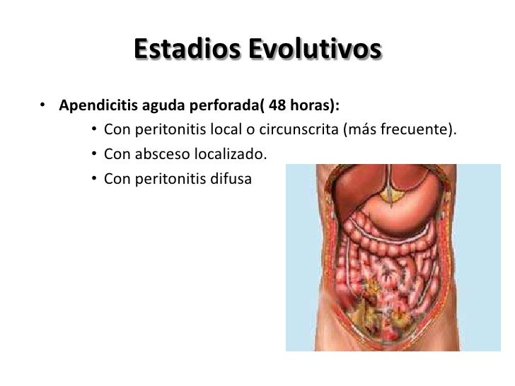 Evolución Clínica• El cuadro clínico típico comienza con Dolor  periumbilical, seguido de anorexia y náuseas.• Para despué...