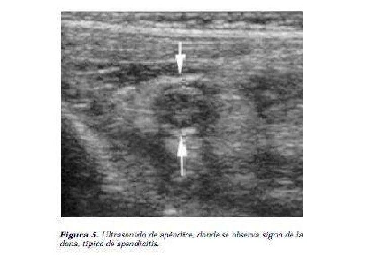 Diagnóstico Diferencial•   Patología gastrointestinal:     – Gastroenteritis aguda: Se distingue por náuseas y vómitos que...
