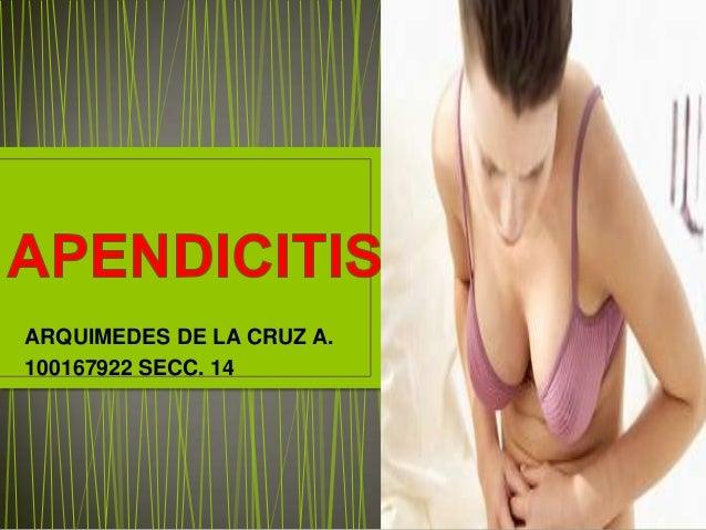 ARQUIMEDES DE LA CRUZ A.100167922 SECC. 14