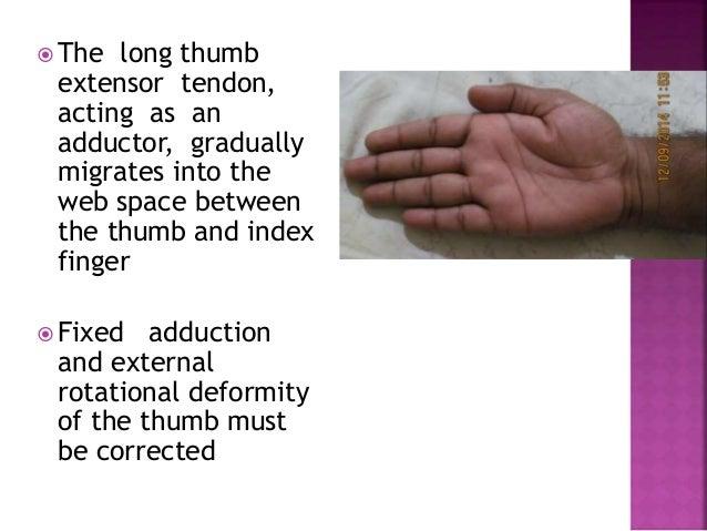 Ape Thumb Deformity To Publish