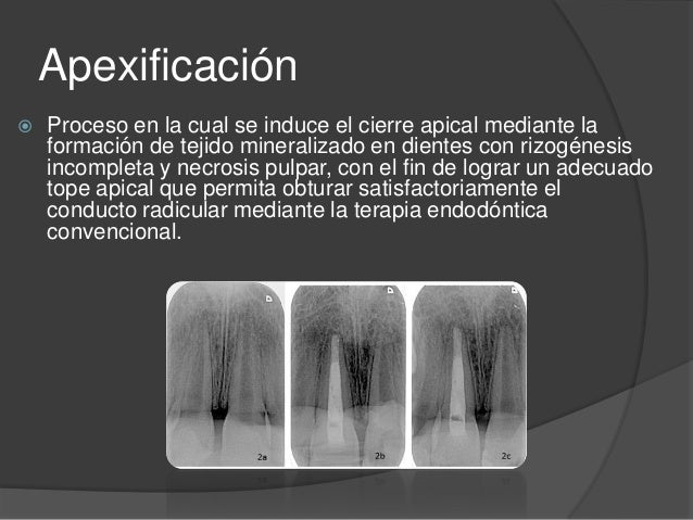 Apexificación Slide 2