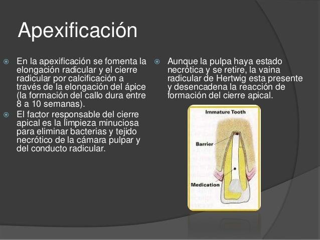 Apexificación Slide 3