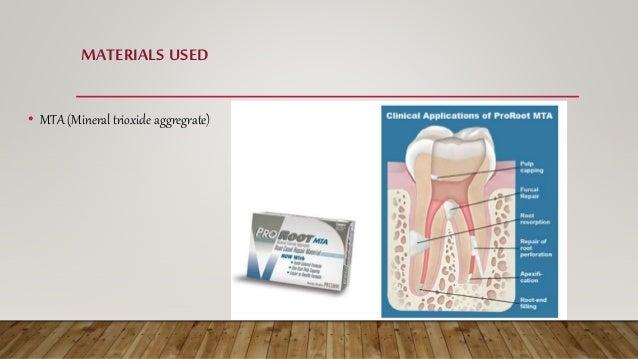 MATERIALS USED • Calcium hydroxide