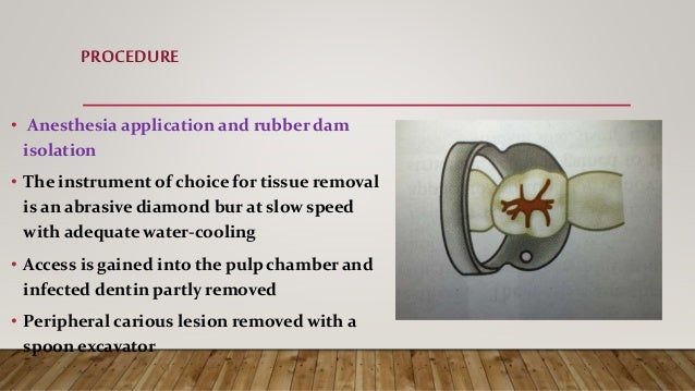 PROCEDURE • Anesthesia application and rubber dam isolation • The instrument of choice for tissue removal is an abrasive d...