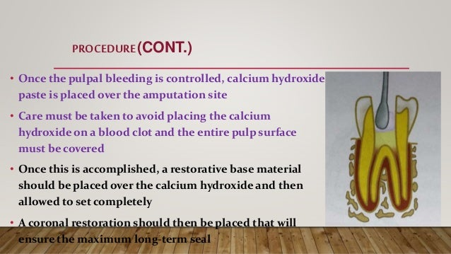 • Once the pulpal bleeding is controlled, calcium hydroxide paste is placed over the amputation site • Care must be taken ...