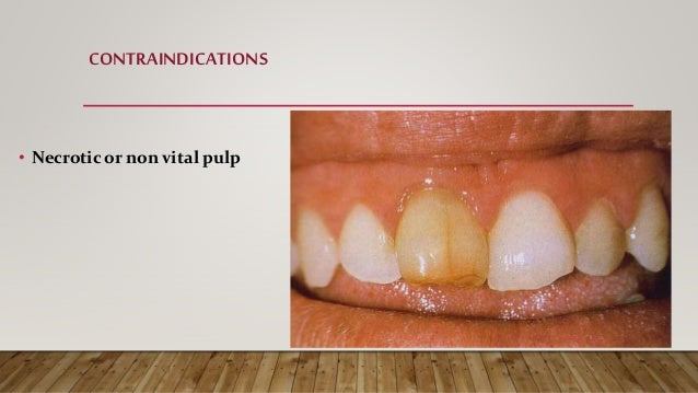 CONTRAINDICATIONS • Unrestorable carious tooth