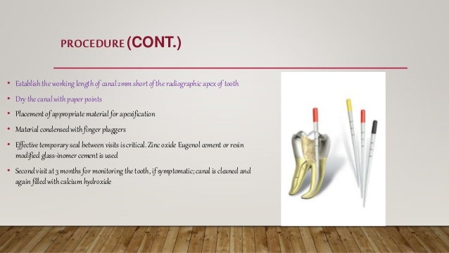 • Establish the working length of canal 2mm short of the radiographic apex of tooth • Dry the canal with paper points • Pl...