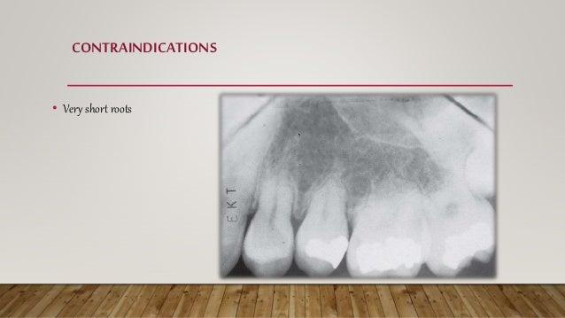 CONTRAINDICATIONS • Compromised periodontium