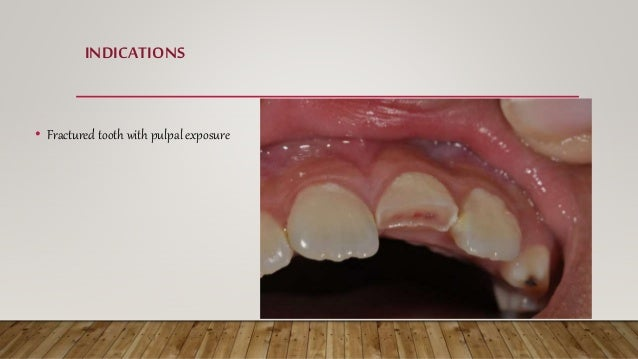 INDICATIONS • Fractured tooth with pulpal exposure
