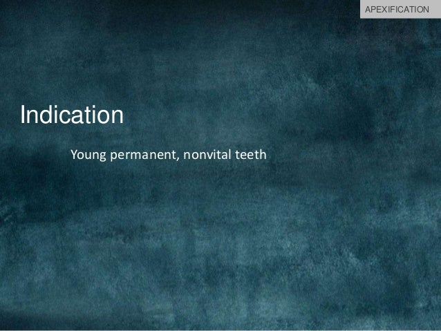 Indication Young permanent, nonvital teeth APEXIFICATION
