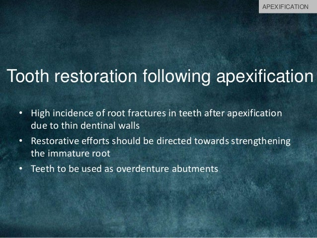 Tooth restoration following apexification • High incidence of root fractures in teeth after apexification due to thin dent...