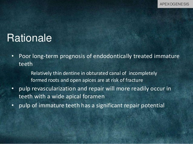 Rationale • Poor long-term prognosis of endodontically treated immature teeth Relatively thin dentine in obturated canal o...