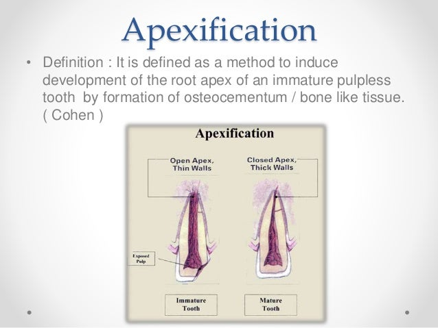 APEXIFICATION AND APEXOGENESIS PDF DOWNLOAD