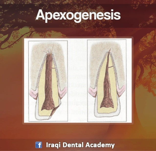 Apexogenesis Procedure - A Pediatric Lecture