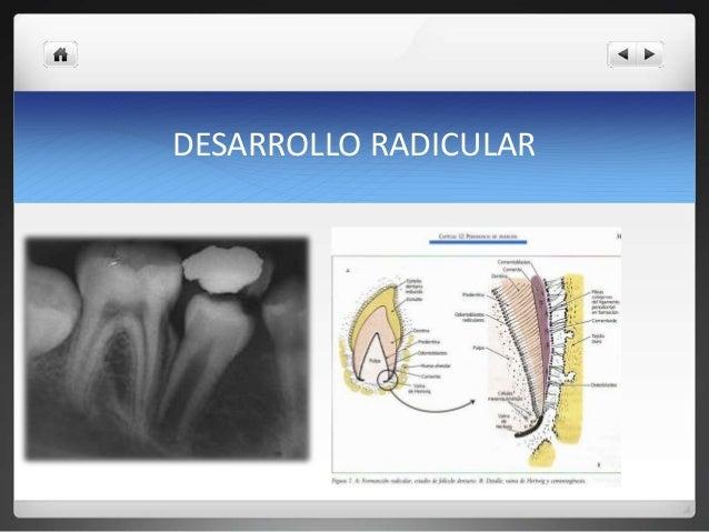 Apexogenesis y apexificacion Slide 2