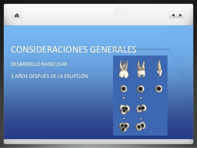 Apexogenesis y apexificacion Slide 3