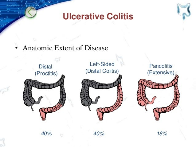 Ulcerative Colitis • Anatomic Extent of Disease Distal (Proctitis) Left-Sided (Distal Colitis) Pancolitis (Extensive) 18%4...