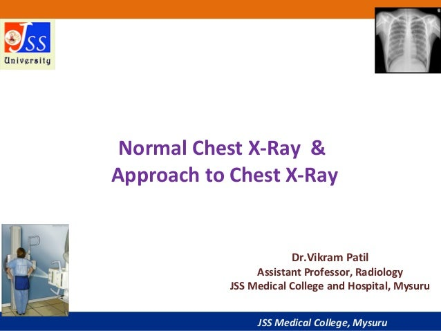 Approach To Chest X Ray And Interpretation
