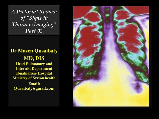 "A Pictorial Review of ""Signs in Thoracic Imaging"" Part 02 Dr Mazen Qusaibaty MD, DIS Head Pulmonary and Internist Departme..."