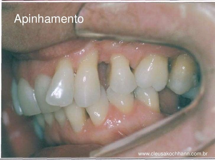 Apinhamento <br />www.cleusakochhann.com.br<br />