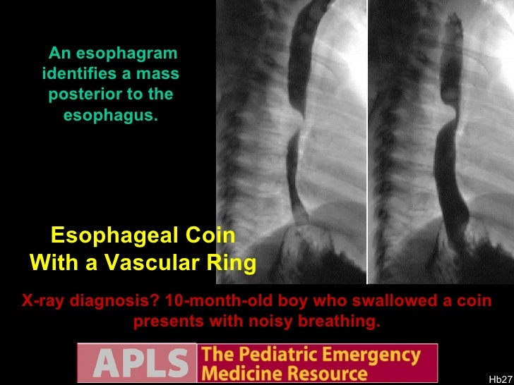 Apls Pediatric Emergency Radiology 2