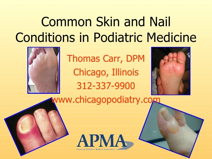 Common Skin and Nail Conditions in Podiatric Medicine <ul><li>Thomas Carr, DPM </li></ul><ul><li>Chicago, Illinois </li></...