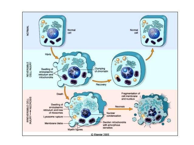 plasmacellsbalanit behandling