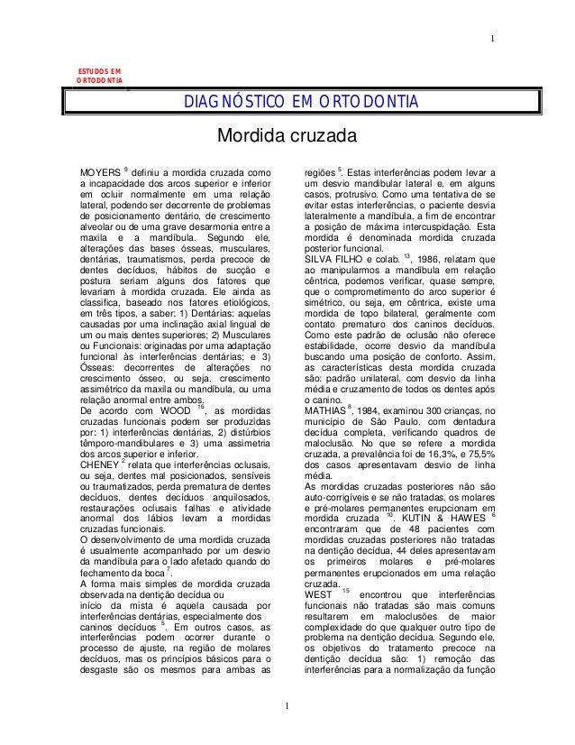 1 1 ESTUDOS EM ORTODONTIA DIAGNÓSTICO EM ORTODONTIA Mordida cruzada MOYERS 9 definiu a mordida cruzada como a incapacidade...