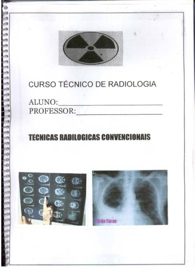 •CURSO TÉCNICO DE RADIOLOGIAALUNO:                           _PROFESSOR:TECNICIS RIOllOBICIS CONVENCIONAIS