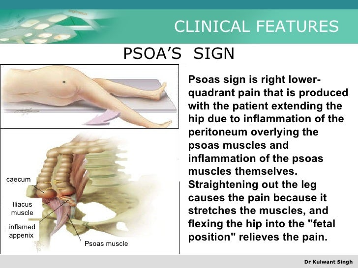 Image result for psoas sign