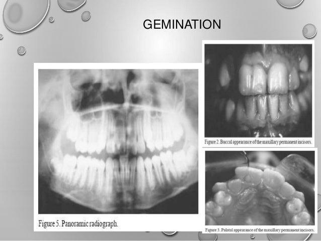 bilateral fusion of mandibular second molars Braz dent j (2002) 13(2): 137-141 bilateral fusion of mandibular second molars  with supernumerary teeth: case report eduardo nunes1 ivaldo gomes.