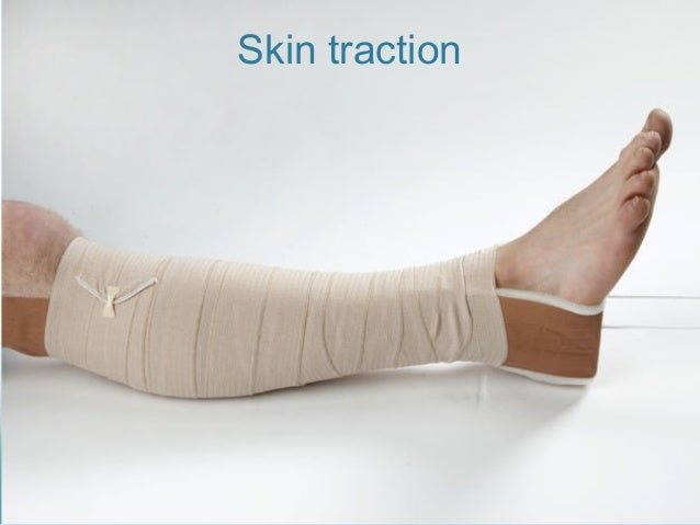 Skin traction  Skin traction