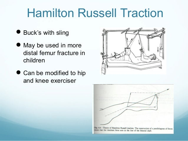 Hip Dislocation Traction, Hip, Get Free Image About Wiring ...
