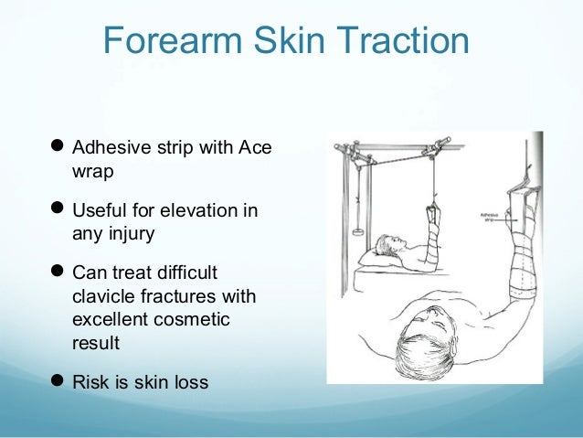 Forearm Skin Traction  Adhesive strip with Ace wrap   Useful for elevation in any injury   Can treat difficult  clavicl...