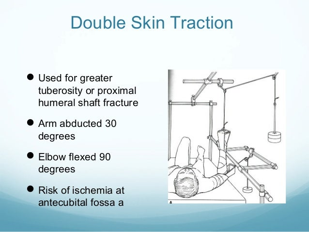 Double Skin Traction  Used for greater  tuberosity or proximal humeral shaft fracture   Arm abducted 30 degrees   Elbow...