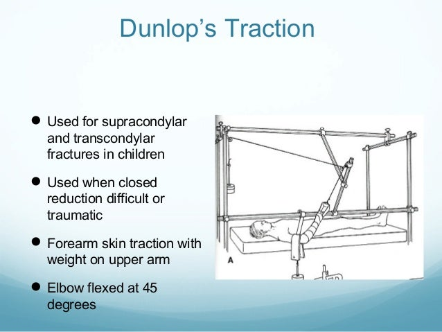 Dunlop's Traction   Used for supracondylar and transcondylar fractures in children   Used when closed  reduction difficu...