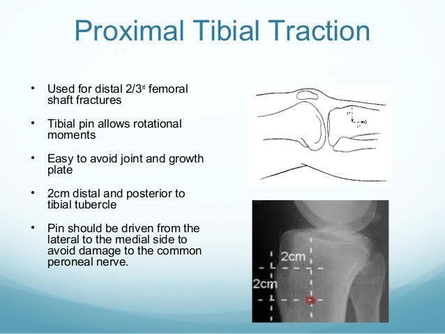Proximal Tibial Traction •  Used for distal 2/3rd femoral shaft fractures  •  Tibial pin allows rotational moments  •  Eas...
