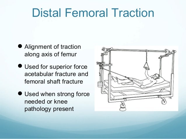 Distal Femoral Traction  Alignment of traction along axis of femur   Used for superior force  acetabular fracture and fe...
